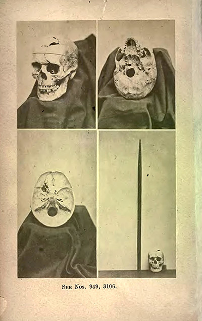 Frontispiece, showing multiple views of Gage's exhumed skull, and tamping iron, 1870, HT to Slate.